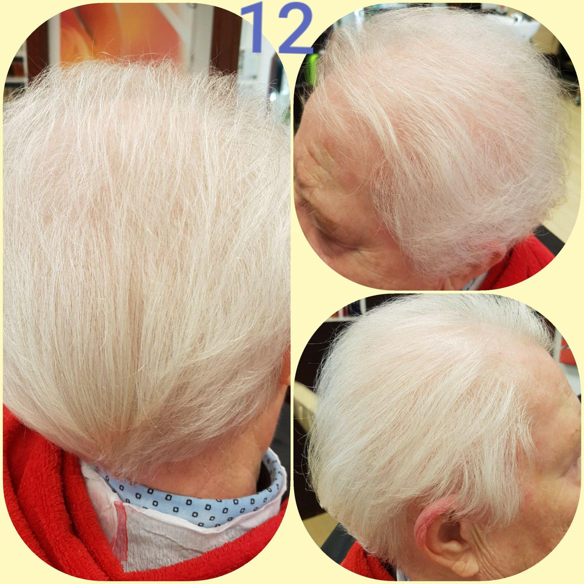 Lasertherapie gegen Haarausfall